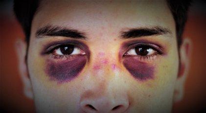 Policía de Centenario golpeó brutalmente a un joven e intentaron hacerlo pasar por accidente